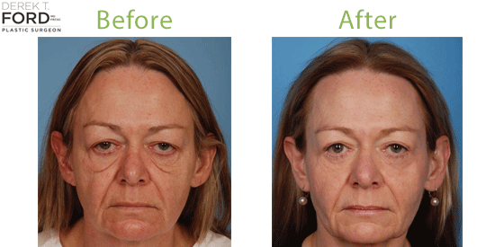 See before-and-after photos of real eyelid surgery patients at Ford Plastic Surgery in Toronto.