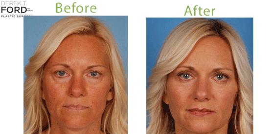 See before-and-after pictures from blepharoplasty patients in Toronto.