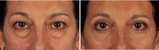 Eyelid surgery before-and-after photos