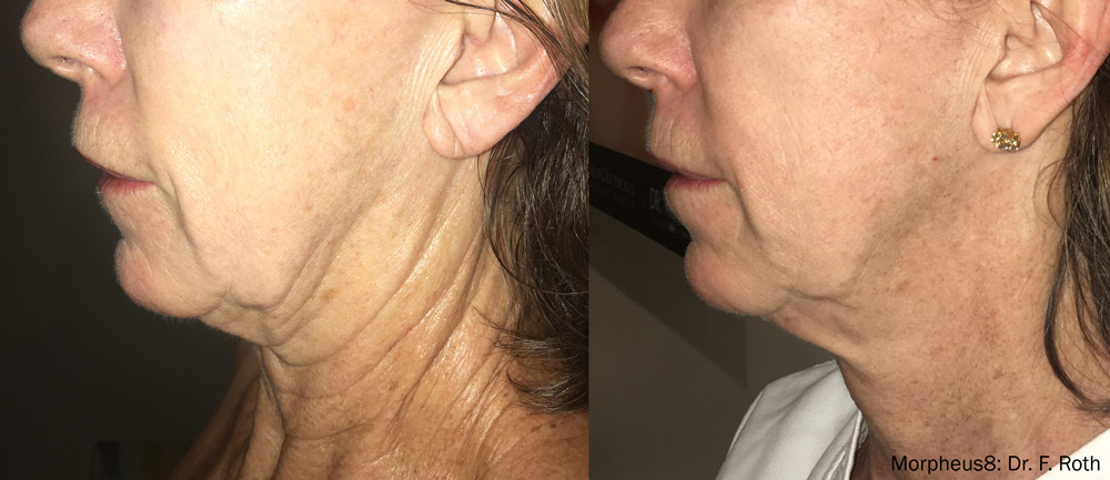 Before and after Morpheus8 RF Microneedling